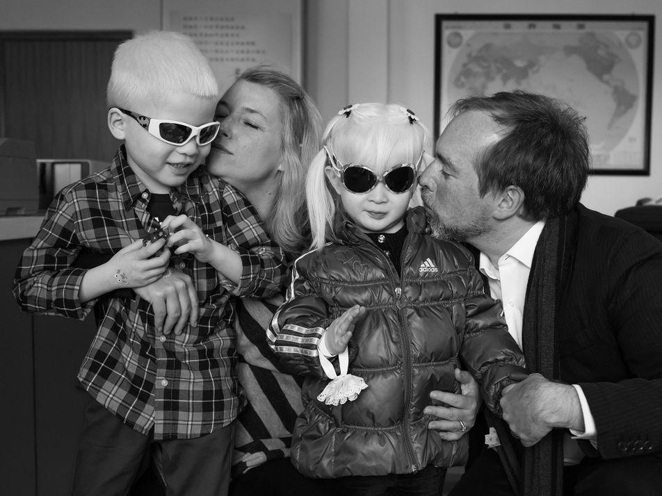 Galerie: Eine Fotostory über Albinismus veränderte die Zukunft dieser Familie