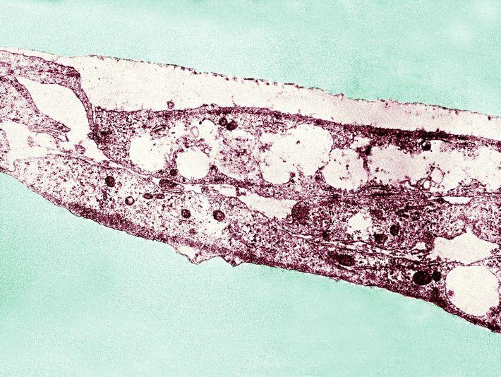 Das Bakterium Treponema pallidum kann sowohl Syphilis als auch Frambösie verursachen. Neue Gentest ermöglichen es Forschern, ...