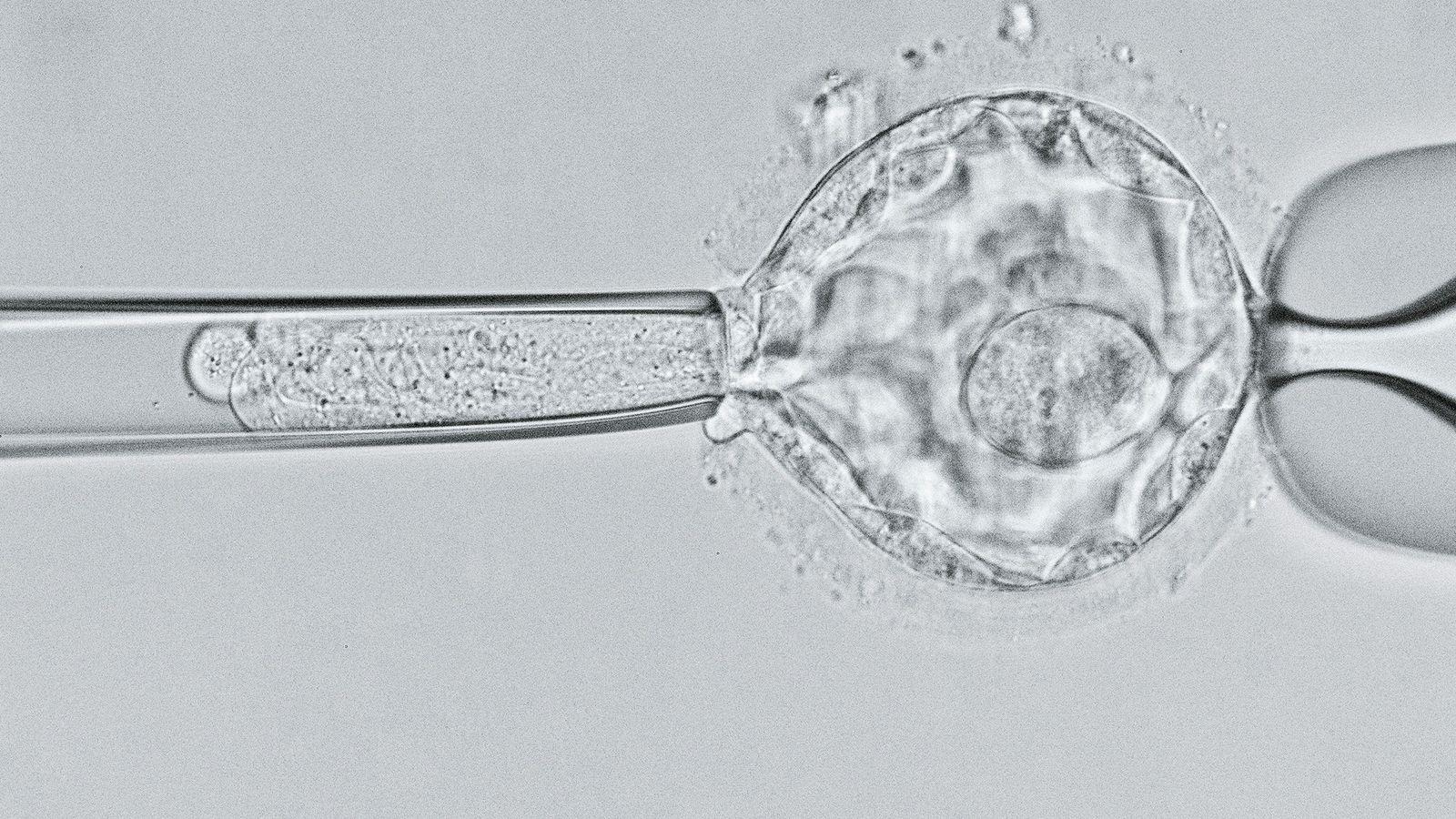 Wissenschaftler untersuchen eine fünf Tage als Blastozyste auf das Gen für Mukoviszidose. Mit einer Reihe von ...