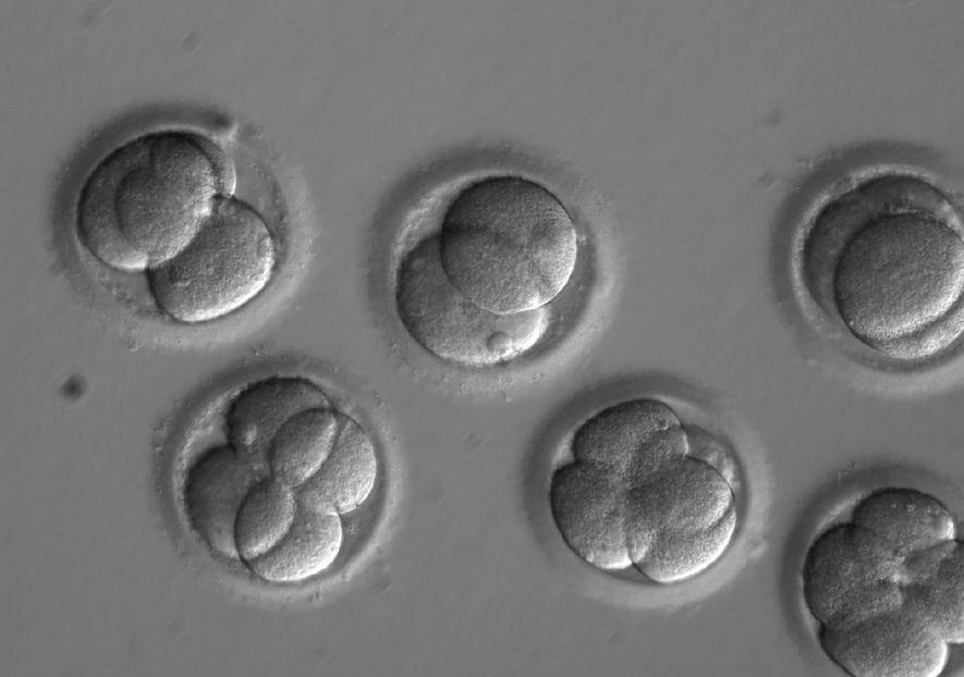 """Erste menschliche Embryos in den USA """"editiert"""""""