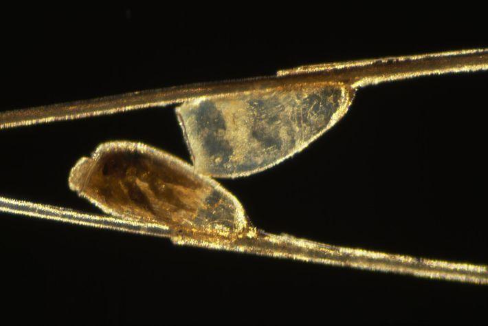Der Blick durch ein Mikroskop offenbart Eier von Kopfläusen, die an Haaren kleben.
