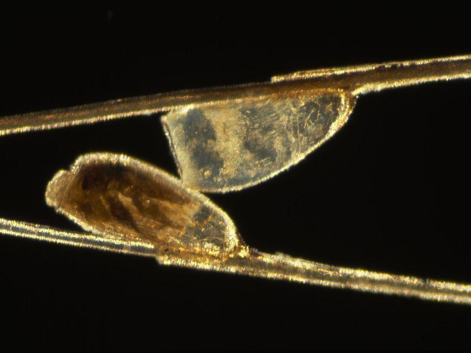Wenn es unter der Haut krabbelt: Dermatozoenwahn verbreiteter als angenommen