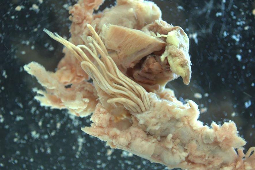 Die nudelartigen Organismen in der Bildmitte sind adulte Ratten-Lungenwürmer, die aus einer Lungenarterie einer Ratte ausbrechen.