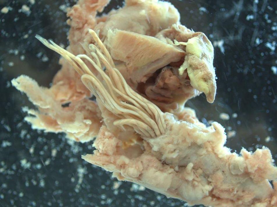 Galerie: Parasit lauert in rohen Schnecken