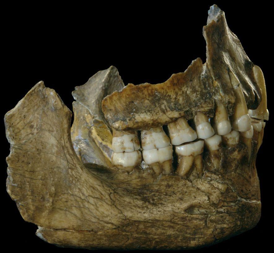 """Prähistorisches """"Aspirin"""" in Neandertalerzähnen entdeckt"""