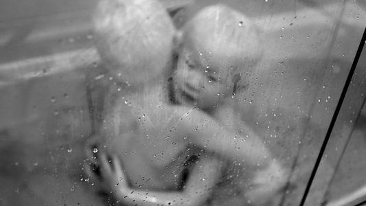 Eine Fotostory über Albinismus veränderte die Zukunft dieser Familie