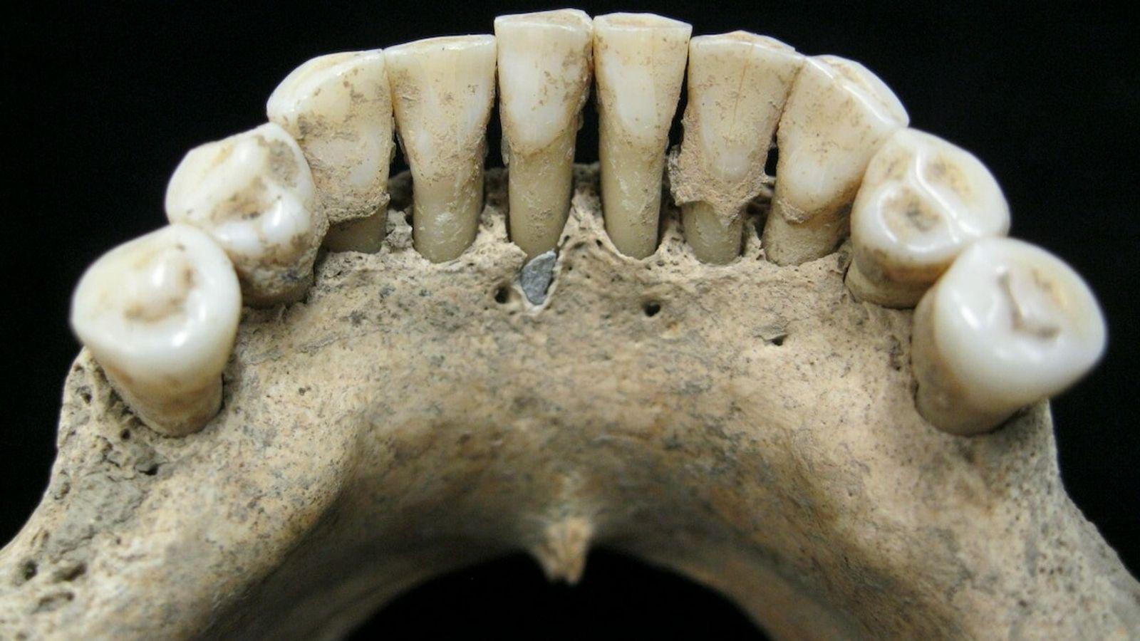 In dem fossilen Zahnbelag einer Frau aus dem Mittelalter wurden Spuren des kostbaren Edelsteins Lapislazuli entdeckt.