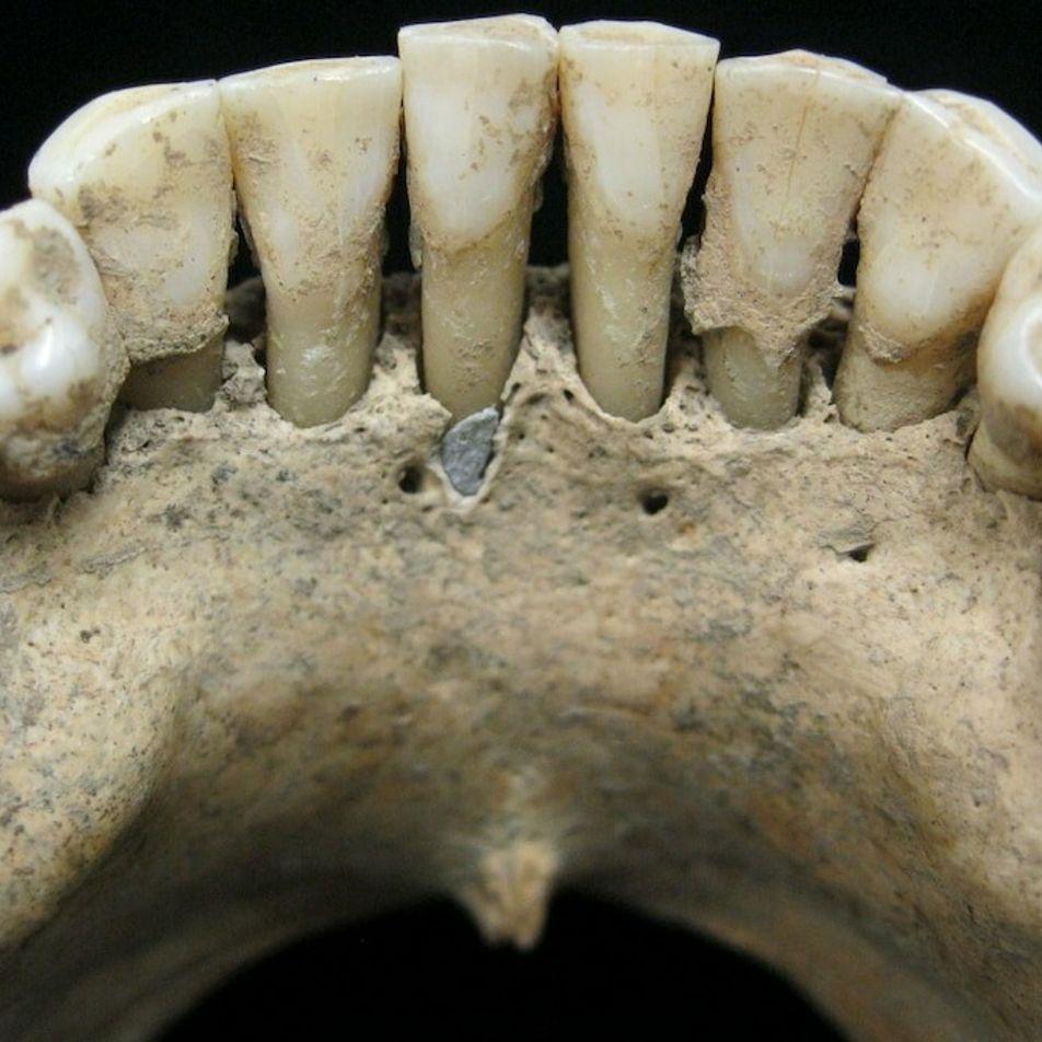 Blaue Zähne: Wissenschaftler lösen Rätsel um Frau aus dem Mittelalter