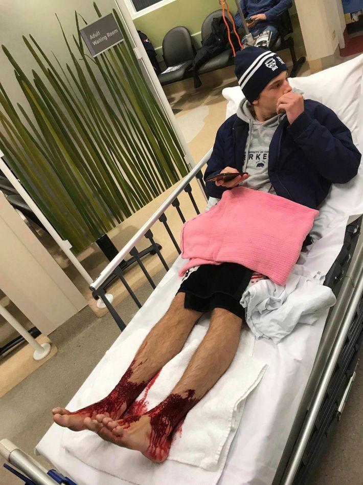 Teenager mit blutigen Beinen