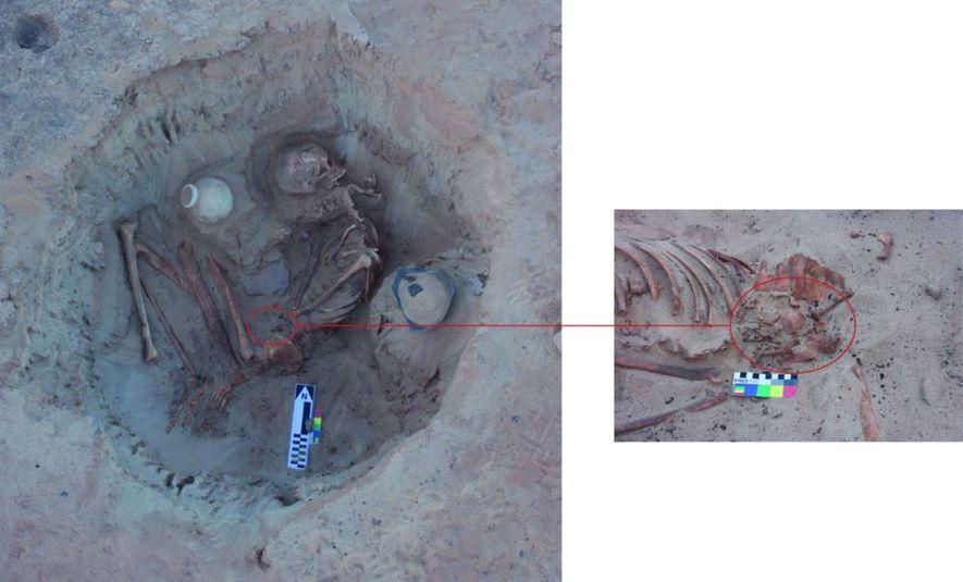 Die Entdeckung eines Fötus aus dieser Epoche, der sich noch im Mutterleib befindet, sei eine Seltenheit, sagt die Professorin Sandra Wheeler. Die Knochen könnten Hinweise auf die Müttersterblichkeit im Alten Ägypten liefern.