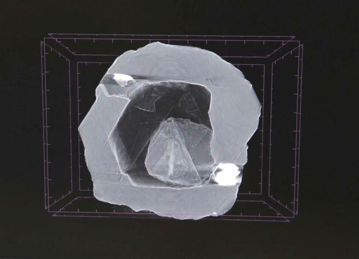 Röntgenaufnahme eines Doppeldiamanten