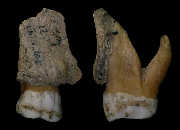 Eine Nahaufnahme der Neandertalerzähne zeigt den Zahnstein als Kruste auf dem Zahnschmelz.
