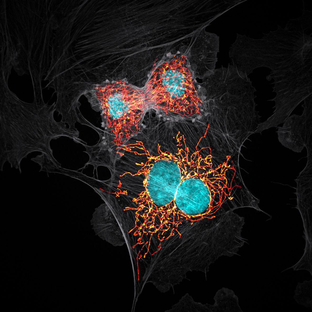 Im Jahr 1979 züchteten Forscher Zellen aus der Lungenarterie einer Kuh, um anhand der daraus hervorgehenden ...