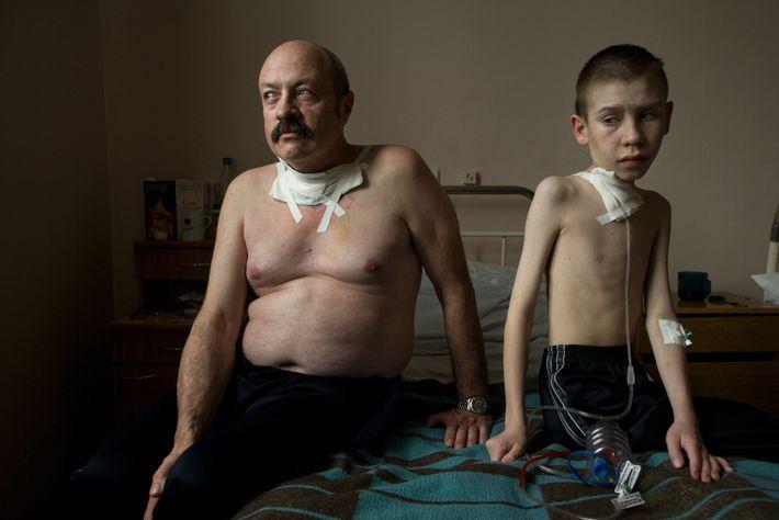 Oleg und Dima leiden an Schilddrüsenkrebs