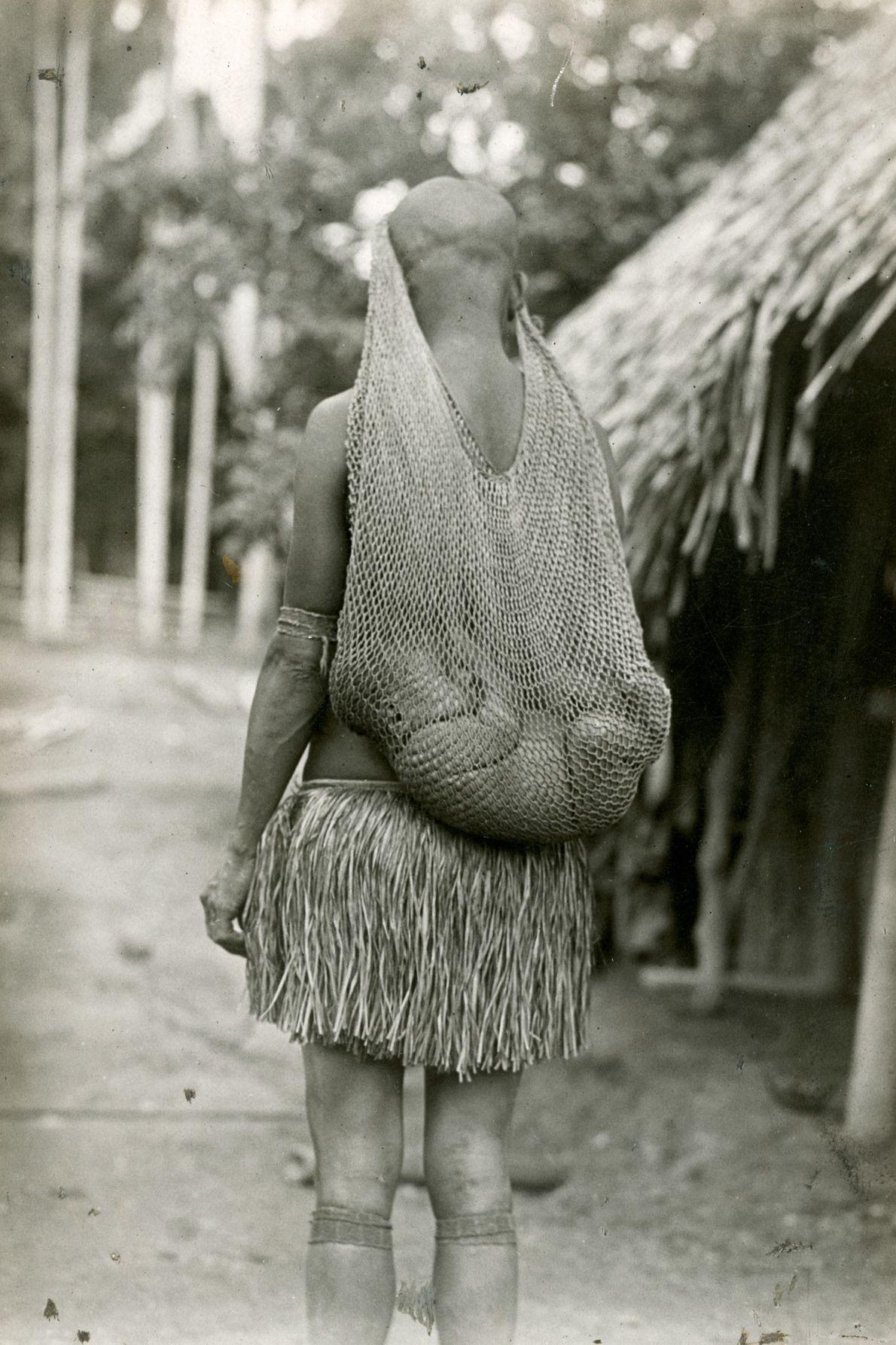 In Papua-Neuguinea schläft ein Baby in einem Netz, das am Kopf seiner Mutter befestigt ist.