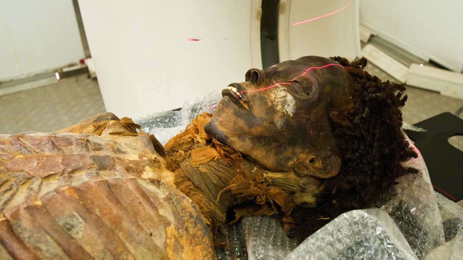 Die Mumie eines ägyptischen Adeligen wird im Rahmen einer Studie über Krankheiten im Altertum einem CT-Scan ...
