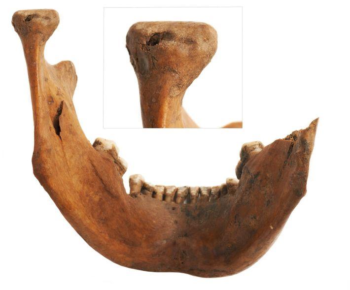 Der Unterkieferknochen eines erwachsenen Mannes, der in der Grube am Walbrook-Bach gefunden wurde, wurde vermutlich von ...