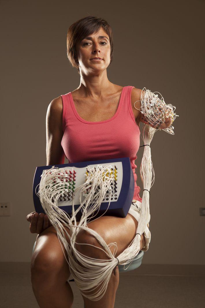 Der Arm von Amanda Kitts wurde mit Zielpunkten markiert wo Drähte befestigt werden sollen; diese Drähte ...