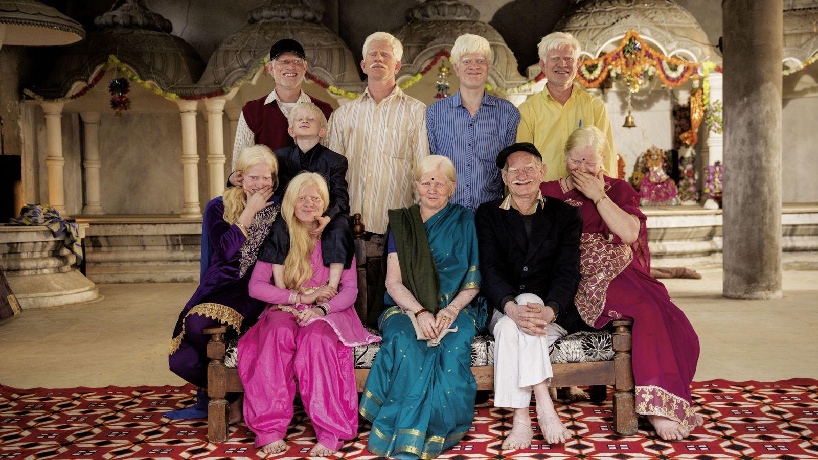 Indische Familie mit Albinismus