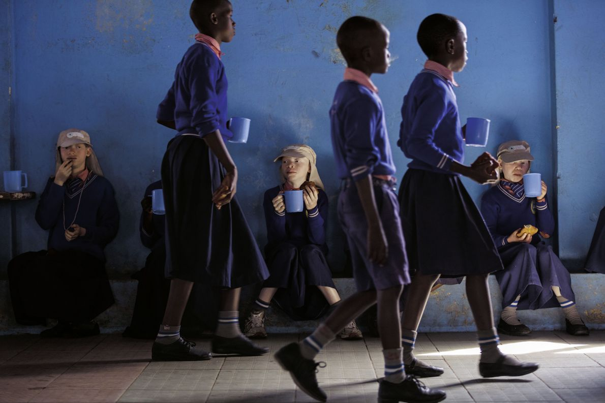 Schüler mit Albinismus in Tansania