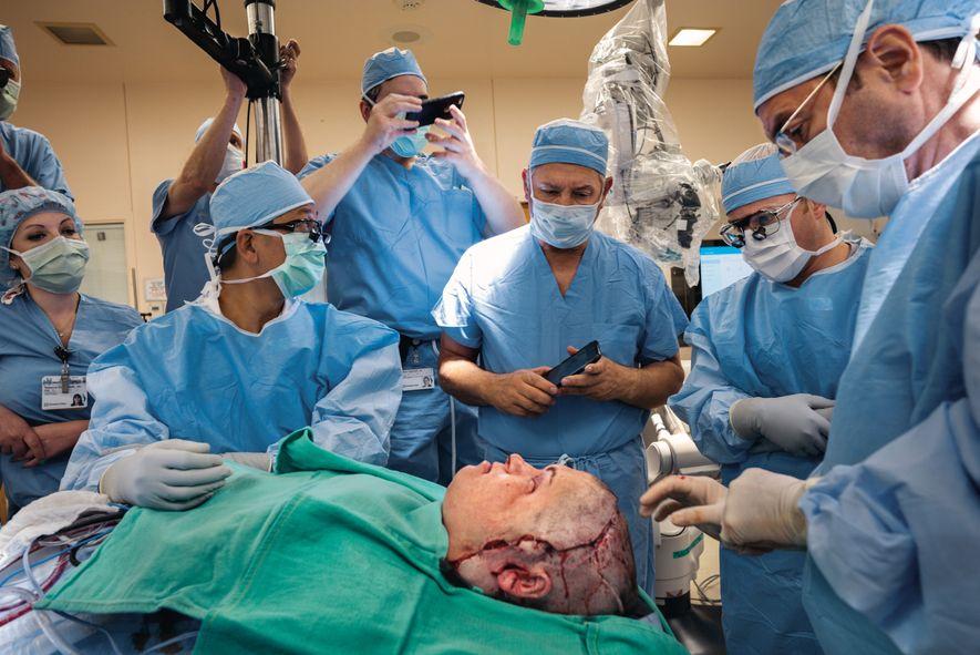 Gesichts-Transplantation