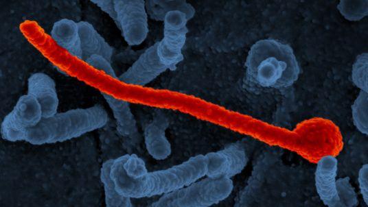 Was macht Ebola so gefährlich?