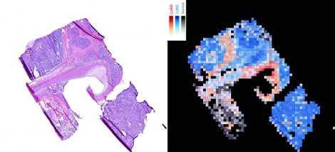 Für die Gewebeprobe (links) lieferte die KI die Analyse (r.): normales Lungengewebe (grau) und zwei Formen ...