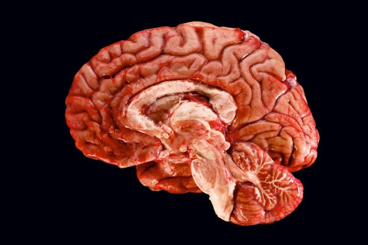 Dieser Querschnitt eines Gehirns offenbart die verschiedenen Bereiche, die an der Entstehung und dem Abrufen von ...