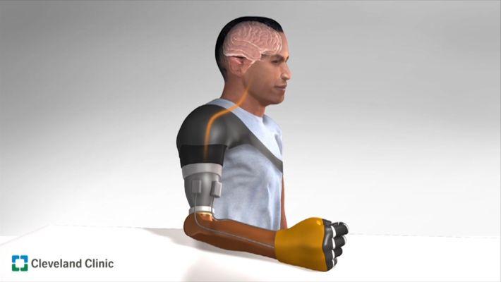Neue Technik ahmt Gefühl in Armprothese nach