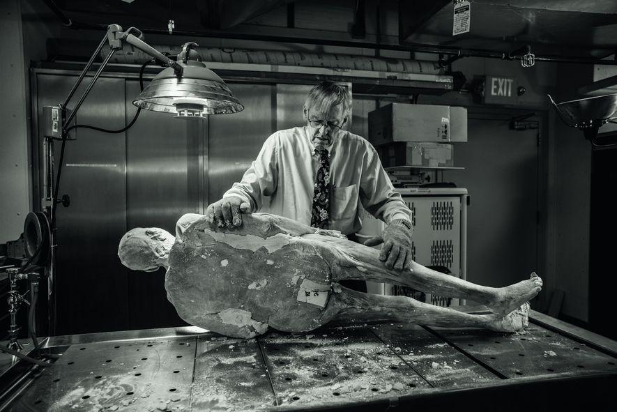 Januar 2017 : Vic Spitzer wird gleich einen Titanstab aus Potters künstlicher Hüfte entfernen, damit der ...