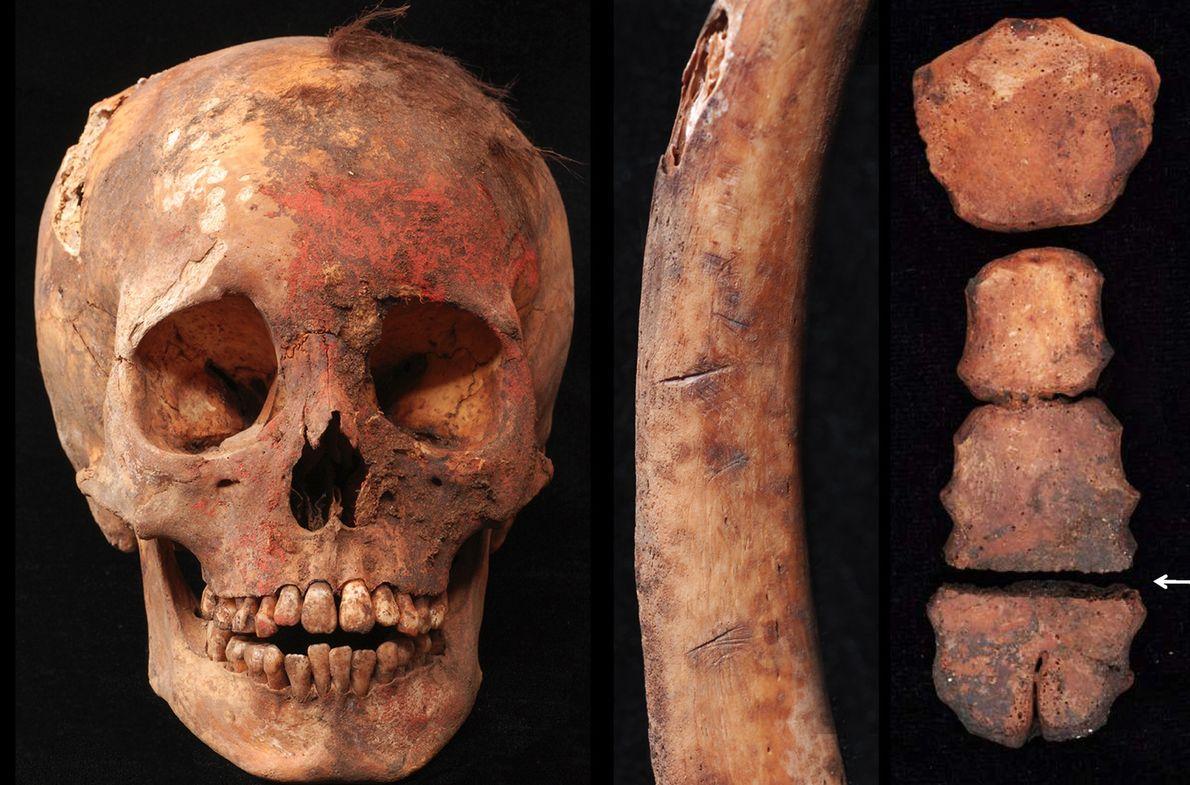 Ein Schädel mit roten Flecken von einem Pigment auf Zinnoberbasis, eine menschliche Rippe mit Schnittspuren und ...