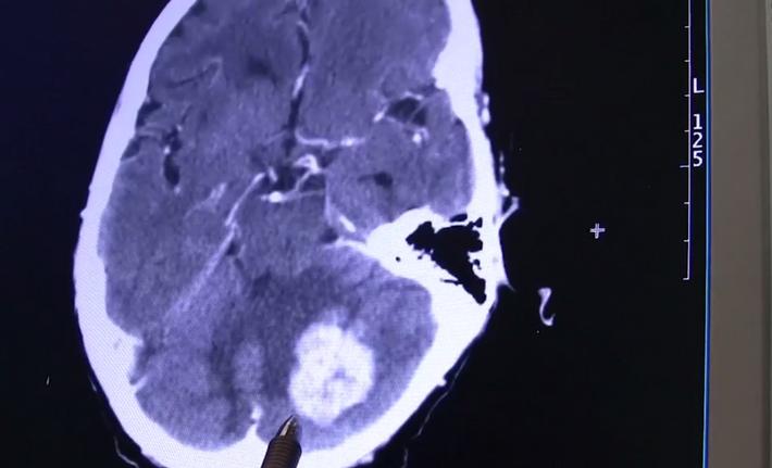 Krankhaftes menschliches Gehirn (Archivbild)