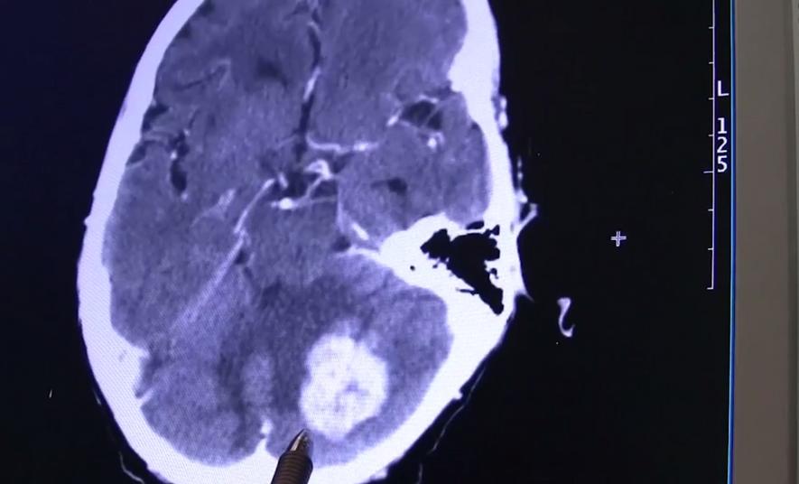 Alzheimer-Plaques bei Mäusen entfernt – wie geht es weiter?
