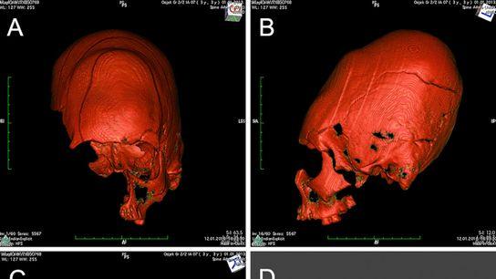 cranial-deformation-05
