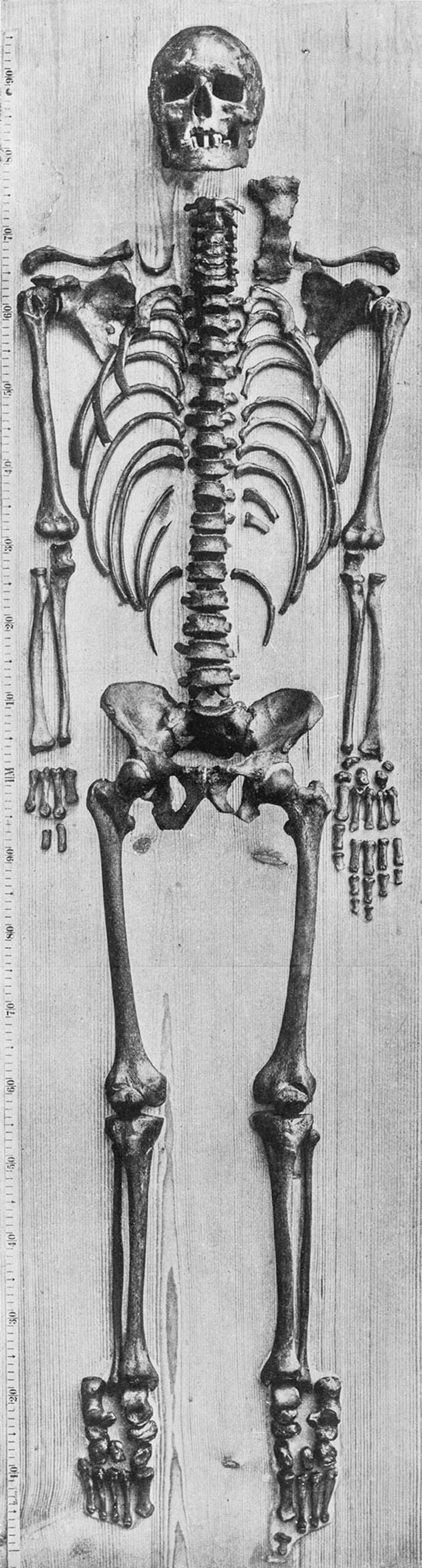 Bachs mutmaßliches Skelett wurde 1895 von dem Anatom Wilhelm His fotografiert. Andreas Otte untersuchte die linke ...