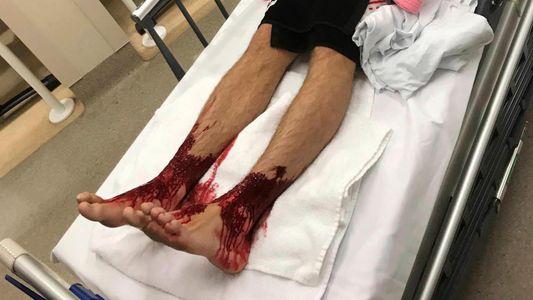 Meerestiere verursachen großflächige Blutungen an Beinen eines Teenagers