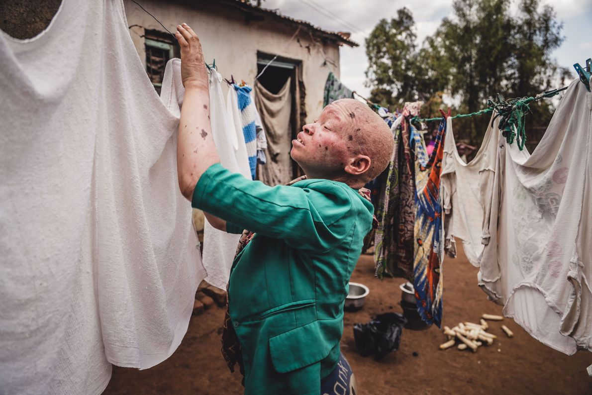 Leben mit Albinismus