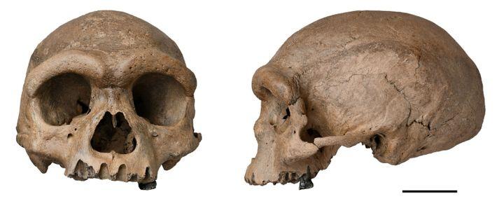 Der Harbin-Schädel weist eine Mischung aus Merkmalen des urzeitlichen und des modernen Menschen auf.