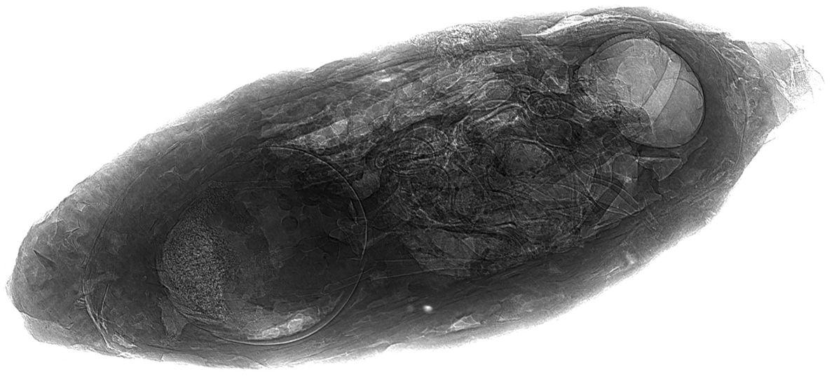 Auf dieser Röntgenaufnahme erkennt man ganz deutlich den versteinerten Parasiten in der Puppe.