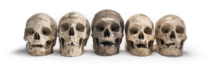 Schädel aus der Sammlung von Samuel Morton, dem Begründer des wissenschaftlichen Rassismus, veranschaulichen seine Einteilung der ...