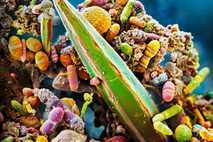 Das Darmmikrobiom zeigt seine Vielfalt in dieser Probe menschlicher Fäkalien, die auch ein riesiges Bakterium enthält, ...