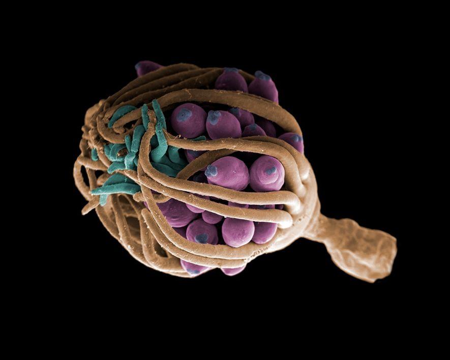 Auf diesem Bild schützt eine Hydrozoe ihre Gonophoren mit ihren Tentakeln.