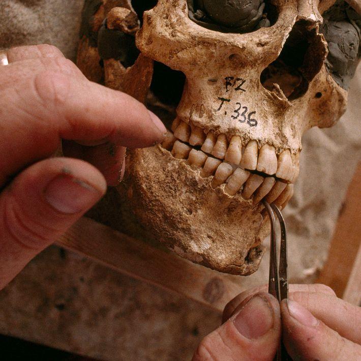 Die Zähne aus diesem Schädel, der in Griechenland gefunden wurde, deuten darauf hin, dass die Person ...
