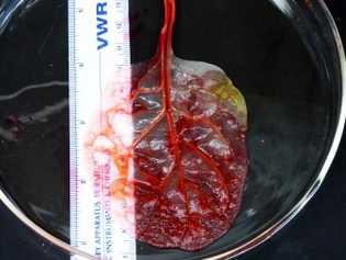 Ein Spinatblatt nach der erfolgreichen Demonstration. Die Farbe ersetzte das Blut, den Sauerstoff und die Nährstoffe, ...