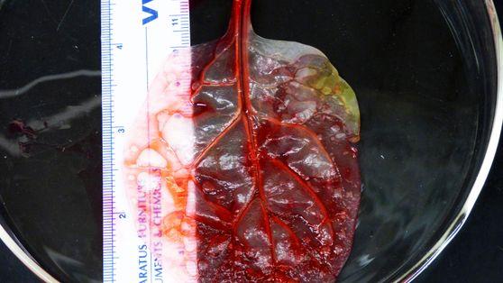 Bioengineering: Herzgewebe aus Spinatblättern