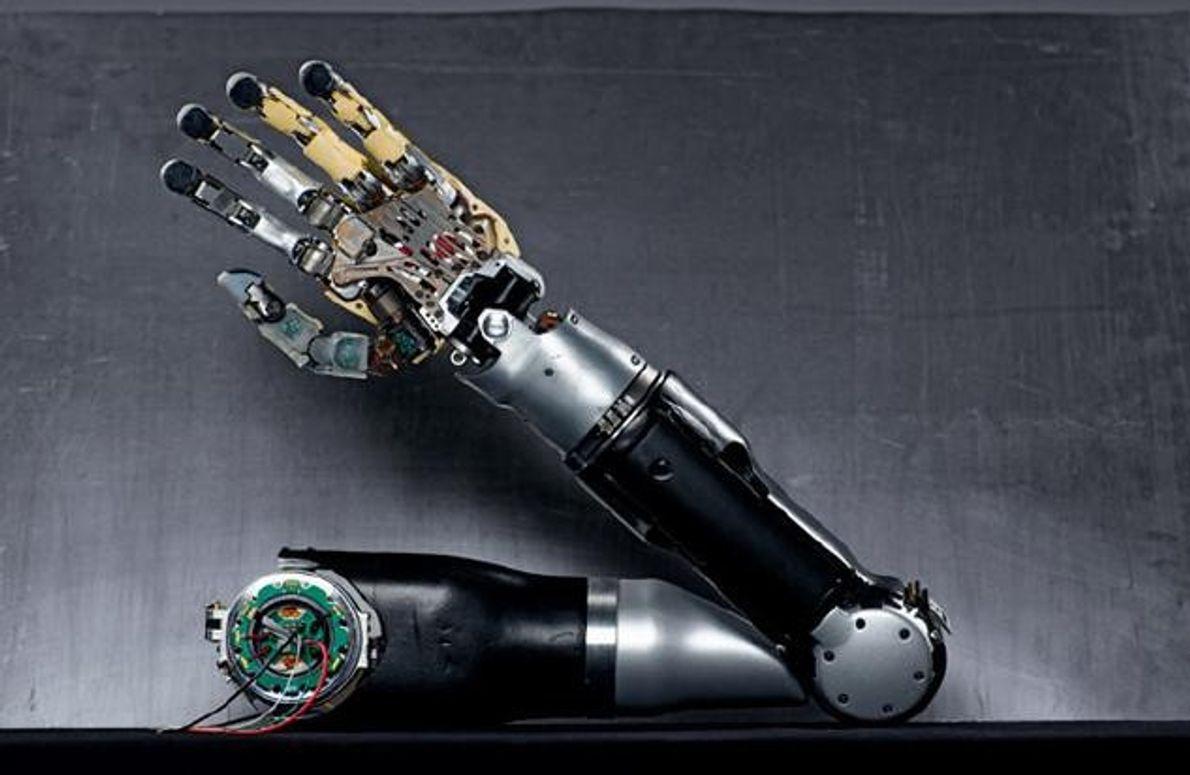 20 Motoren bewegen diesen bionischen Arm fast so präzise, wie es die Natur schafft. Sein Benutzer …