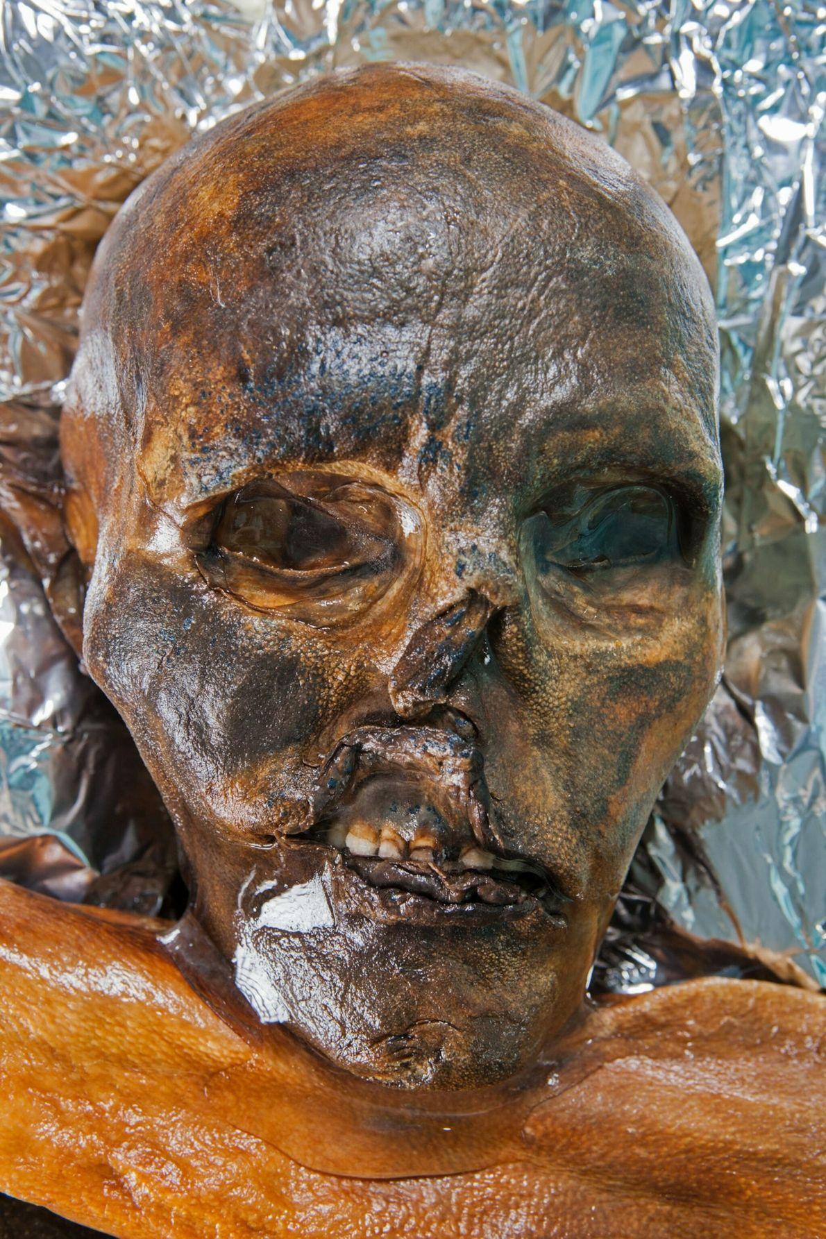 """""""Ötzi war ein Mensch wie du und ich. Er hatte gesundheitliche Probleme, eine Vergangenheit, ein Schicksal ..."""
