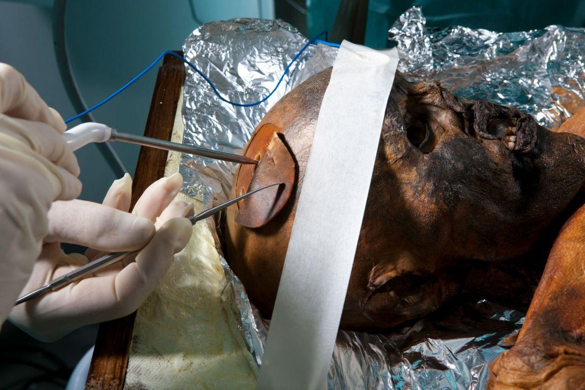Forscher führen im Jahr 2010 eine Autopsie an den Überresten von Ötzi durch, die zu diesem ...