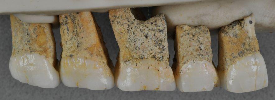 Fünf der sieben Zähne, die dem H. luzonensis zugeordnet werden. Die Zähne sind vergleichsweise klein und ...