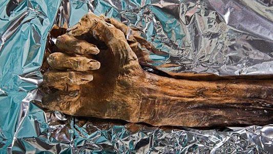 Ötzi – Die Autopsie